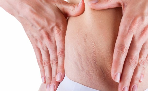 Disadvantages of Removing Stretch Marks by Laser